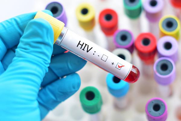 A camisinha é uma das principais formas de prevenção contra a infecção pelo HIV.