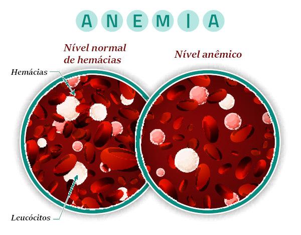 Na anemia pode-se observar uma redução da concentração de hemoglobina ou redução do número de hemácias.