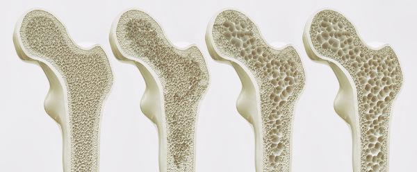 Na osteoporose, os ossos tornam-se mais frágeis.