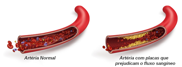 Na aterosclerose, observa-se a redução do calibre da artéria.