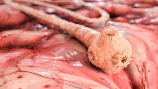 Quando um indivíduo está com teníase, significa que o verme adulto está se desenvolvendo em seu intestino.