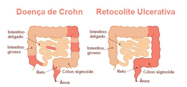 Apesar de serem doenças inflamatórias intestinais, a doença de Crohn e a retocolite ulcerativa possuem diferenças.