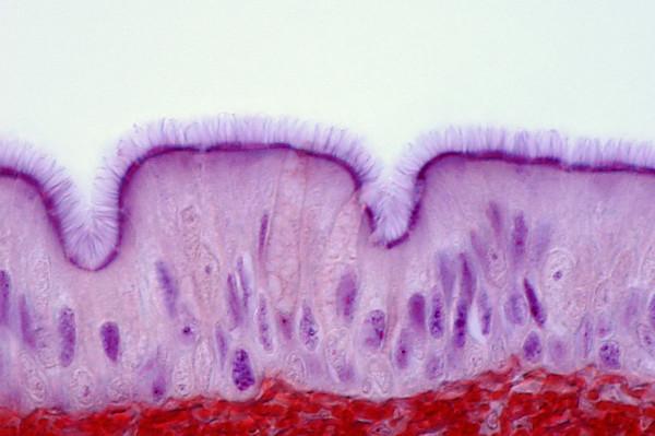 Observe o revestimento interno da traqueia. Na figura é possível perceber que se trata de um epitélio pseudoestratificado ciliado.
