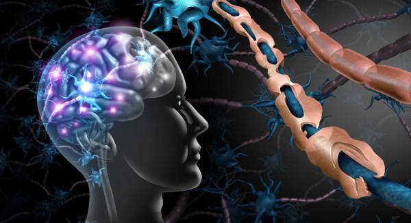Na esclerose múltipla, observa-se um processo de desmielinização.