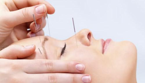 A acupuntura trabalha para harmonizar a energia do corpo.