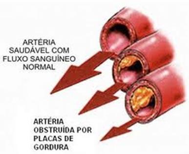 A arteriosclerose é causada pelo acúmulo de colesterol nos vasos sanguíneos