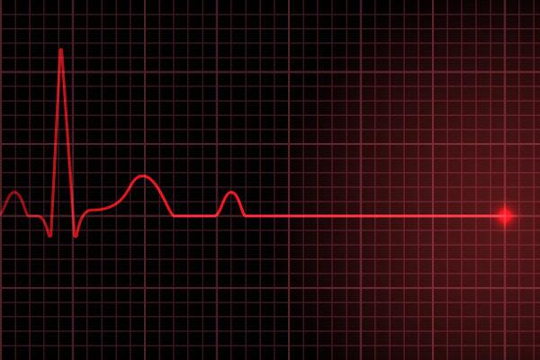 Na parada cardiorrespiratória, observa-se a interrupção dos batimentos cardíacos e movimentos respiratórios.