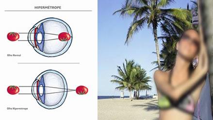 e235404cd3 À esquerda, esquema do olho do Hipermétrope. À direita, a visão do  hipermétrope