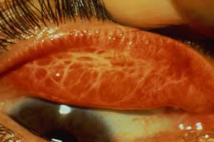 Lesões na conjuntiva, típicas do tracoma
