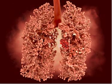 A poeira de amianto faz com que o pulmão enrijeça, levando à doença asbestose, também conhecida como pulmão de pedra