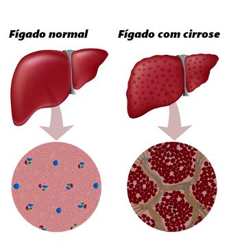 A cirrose ocasiona a fibrose do fígado e o surgimento de nódulos