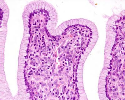 O tecido epitelial apresenta células justapostas e com pouca substância intercelular