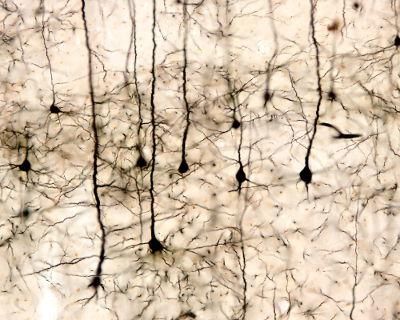 O tecido nervoso apresenta como célula principal os neurônios