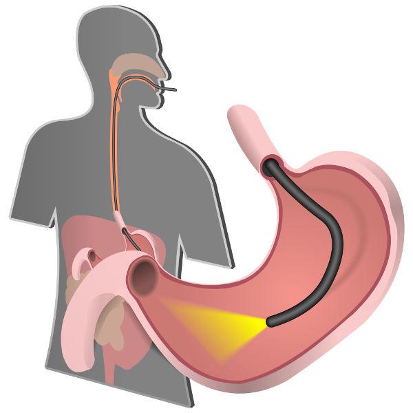 Uma fibra óptica especial é usada para realizar exames de endoscopia.