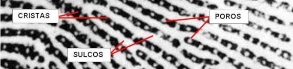 Papilograma com detalhe