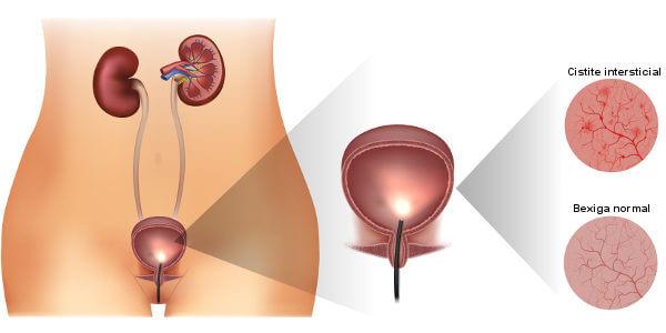 A cistite intersticial causa dor principalmente quando a bexiga está cheia.