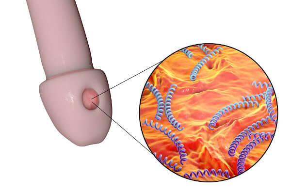 A sífilis primária caracteriza-se pelo surgimento de uma lesão única na região onde a bactéria penetrou.