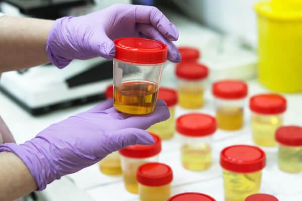 A análise da urina pode identificar um caso de infecção urinária.